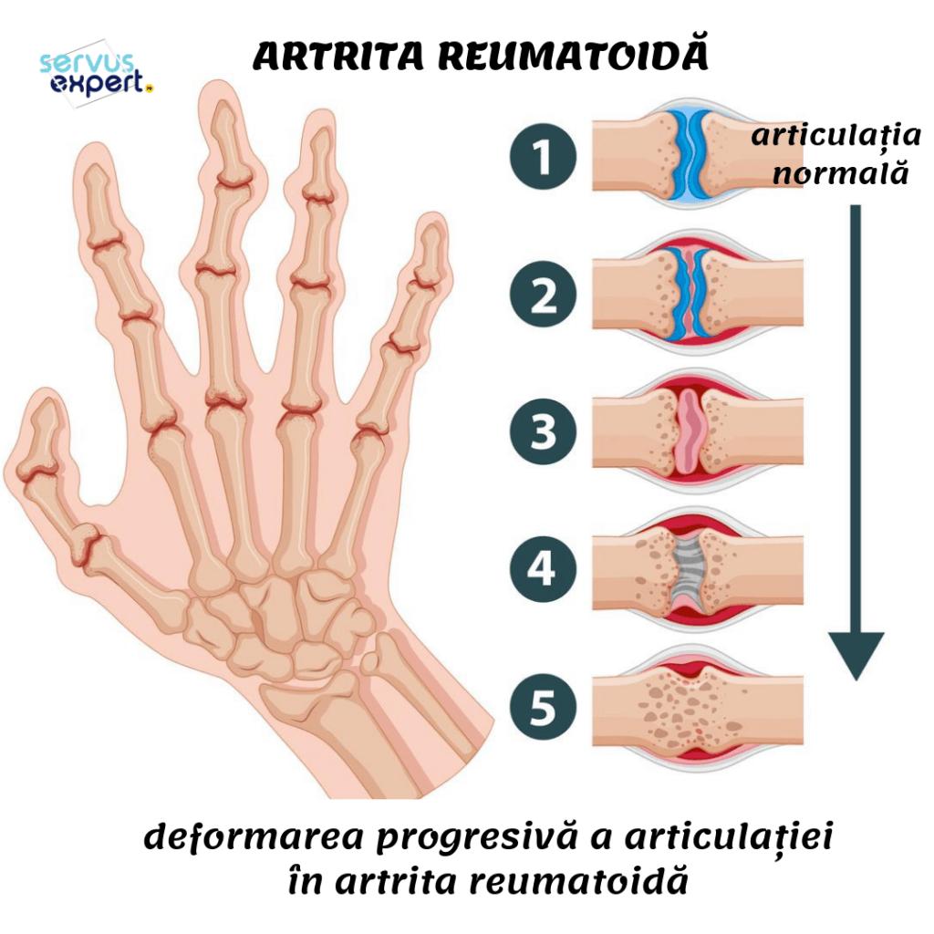 artrita reumatoidă a falangelor degetelor)