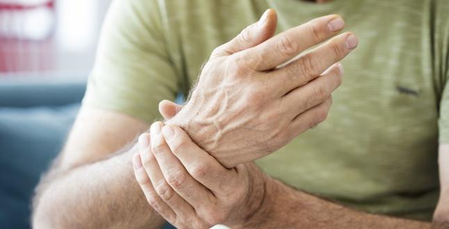 Braț umflat de artrită Poliartrita reumatoida