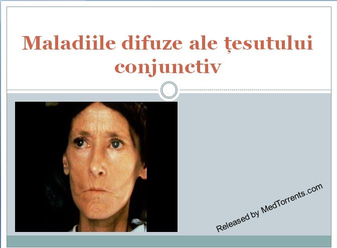 prelegere difuză a bolilor țesutului conjunctiv