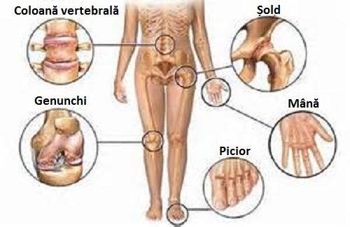 durerile și durerile articulațiilor)