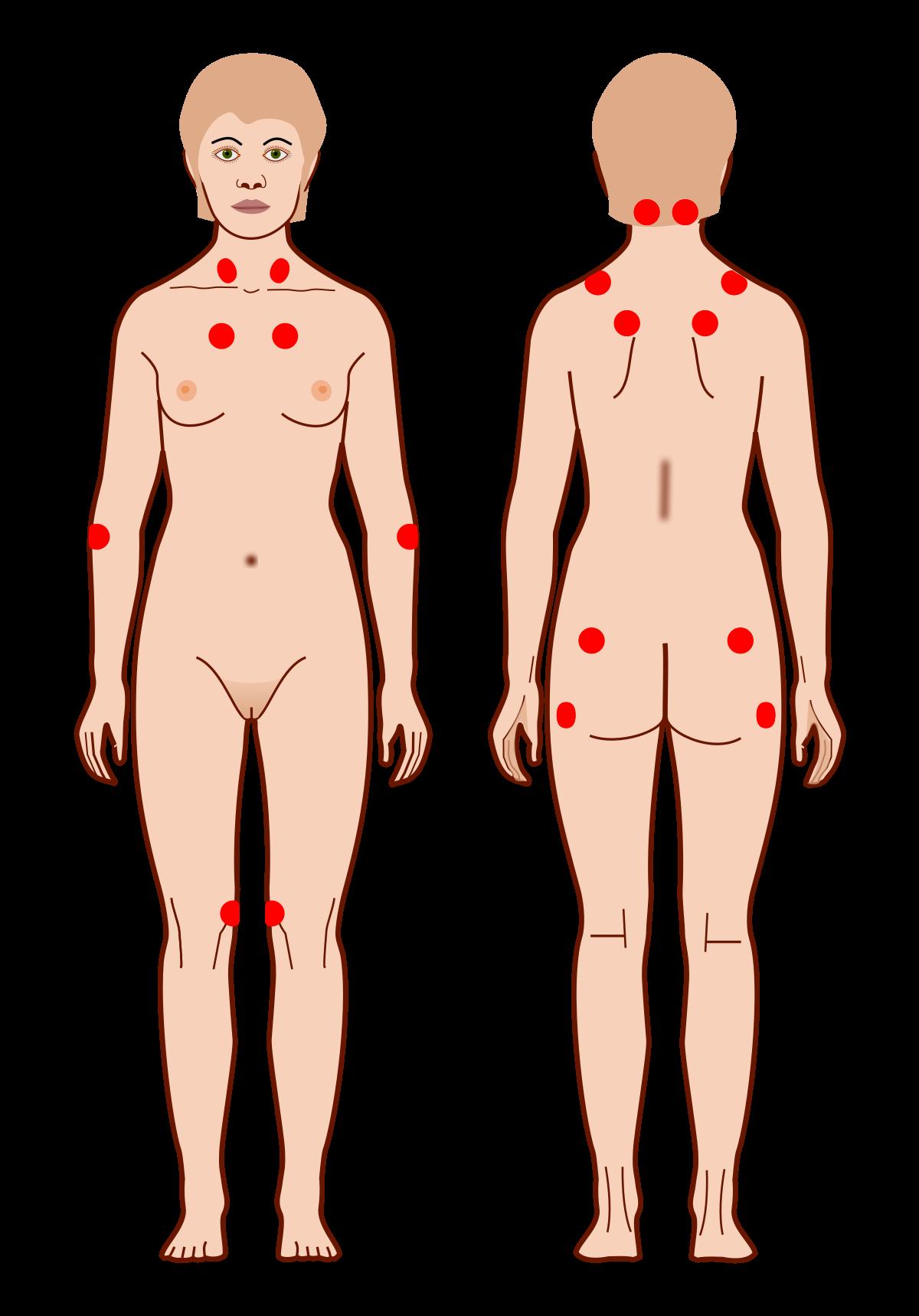 fibromialgia durerii musculare și articulare