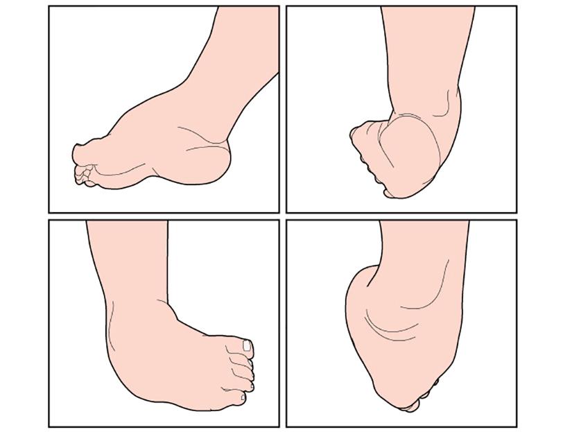 durere în articulațiile piciorului la copii