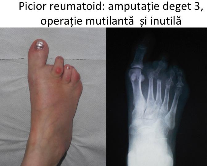 artrita falangei degetelor de la picioare