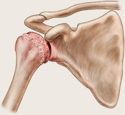 cum se poate vindeca rapid artroza umărului)
