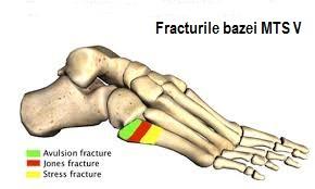 durere în articulațiile tarsal-metatarsiene)