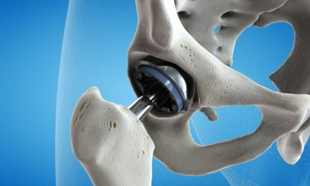 tratamentul articulației false a gâtului femural)