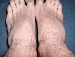 gel pentru entorsa genunchiului)