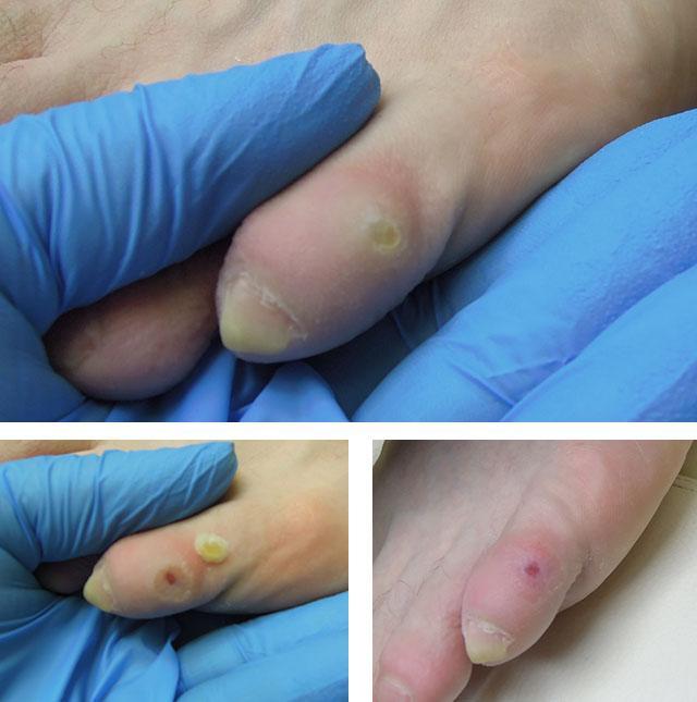 porumb pe articulația inflamației degetelor de la picioare