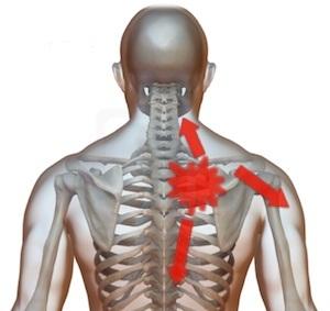 durere în articulații și sub omoplat)