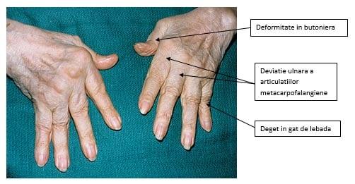 artrita reumatoidă la mâini