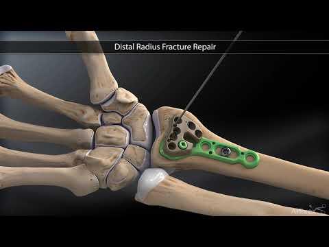 Recuperarea medicală după o fractură de gleznă