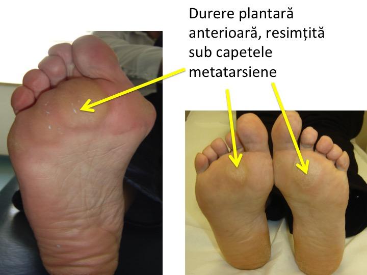 durere a articulației metatarsiene artroza articulației genunchiului cum să o trateze