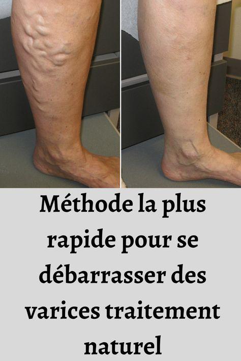 tratament cu sodă cu artroză