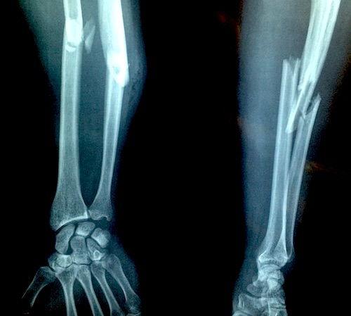 refacerea articulației după fracturarea mâinii)