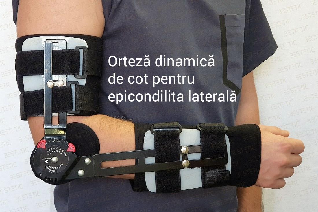 cum se tratează epicondilita laterală)