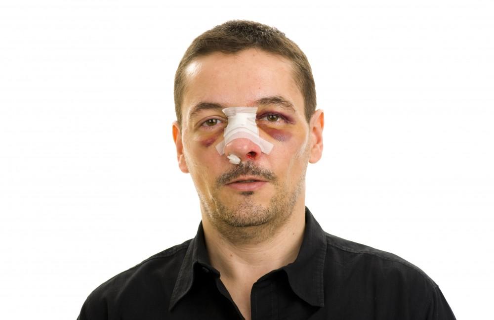 cartilajul nasului
