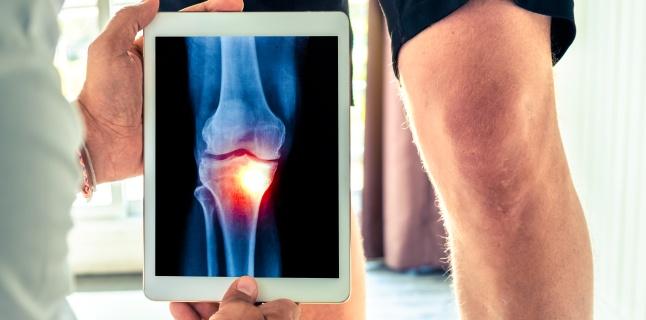 dispozitive fiziologice pentru tratamentul articulațiilor