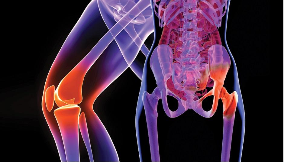 intensificând durerile de șold articulație dureroasă și umflată pe braț