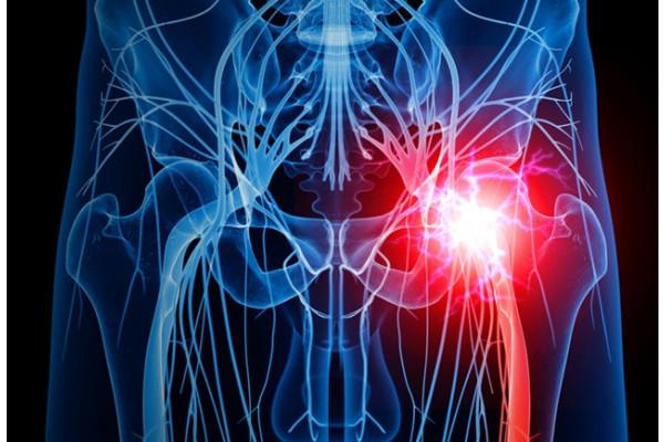 dureri simetrice în articulația șoldului
