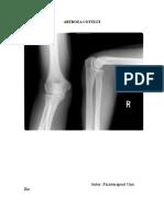 artroza cotului ce este)