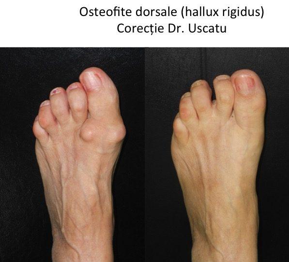 artroza piciorului metatarsian)