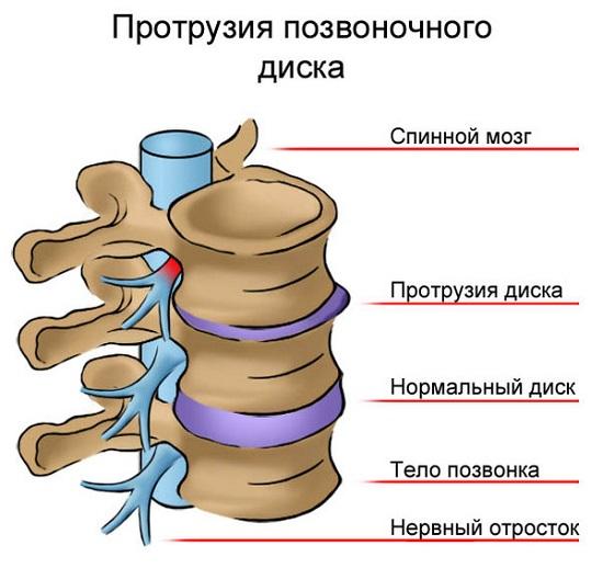 calmant pentru osteochondroza