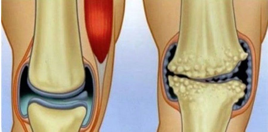 dureri articulare și durere în)