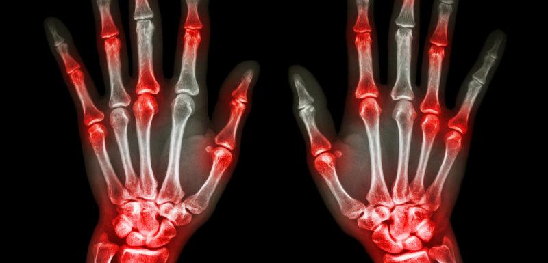 Glezna Osteoartrita Tratament Artrita
