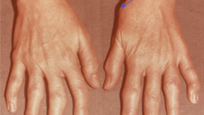 trageri de dureri în articulația degetului mare)