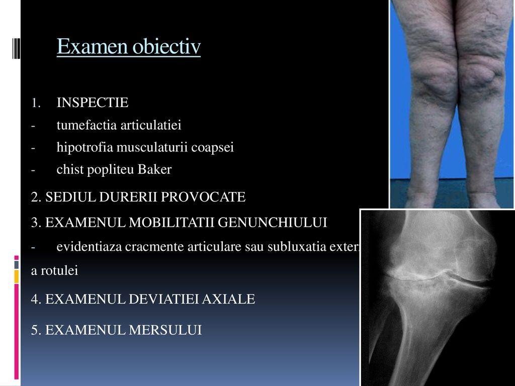 artroza difuză a genunchiului