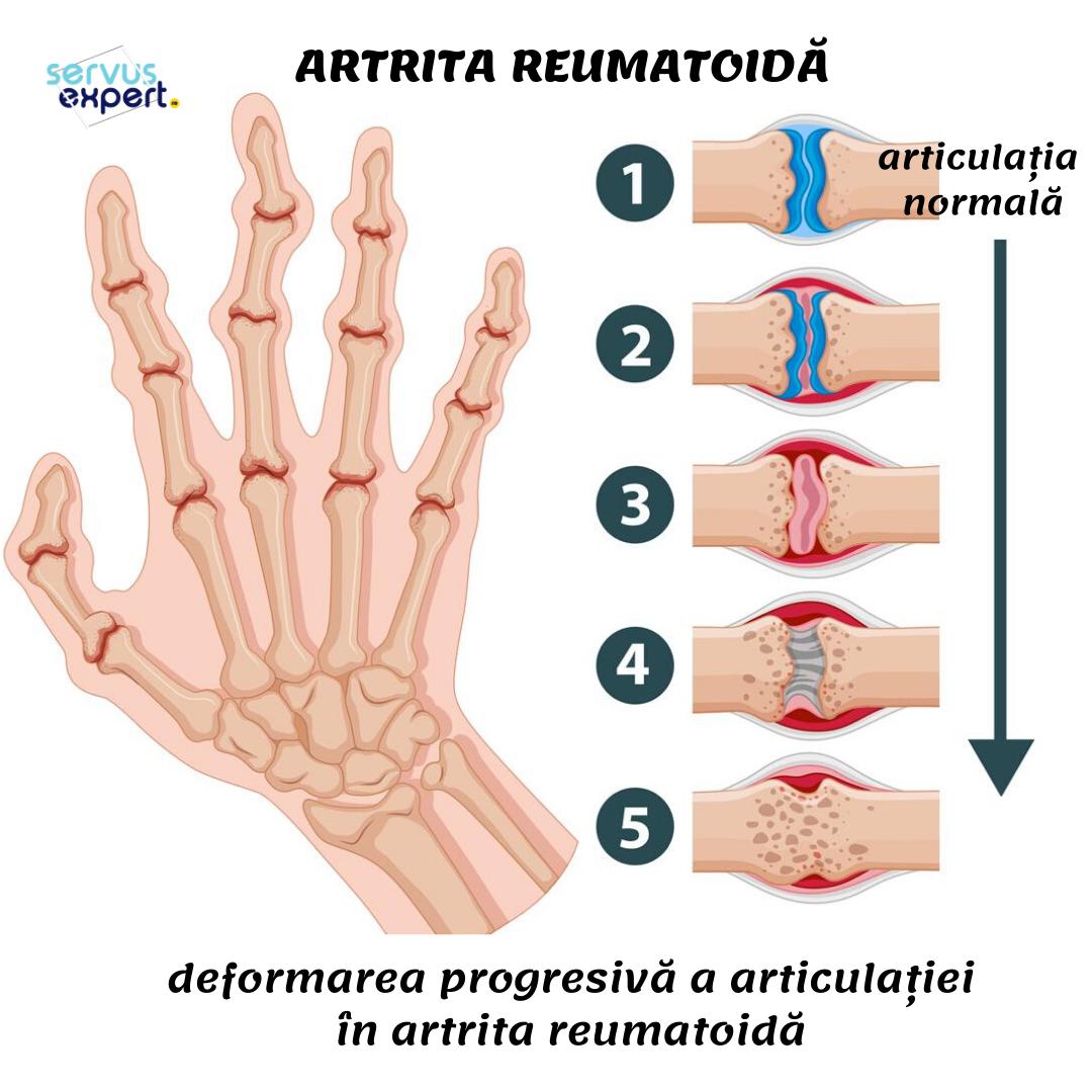 durere în artrita degetelor îndoite