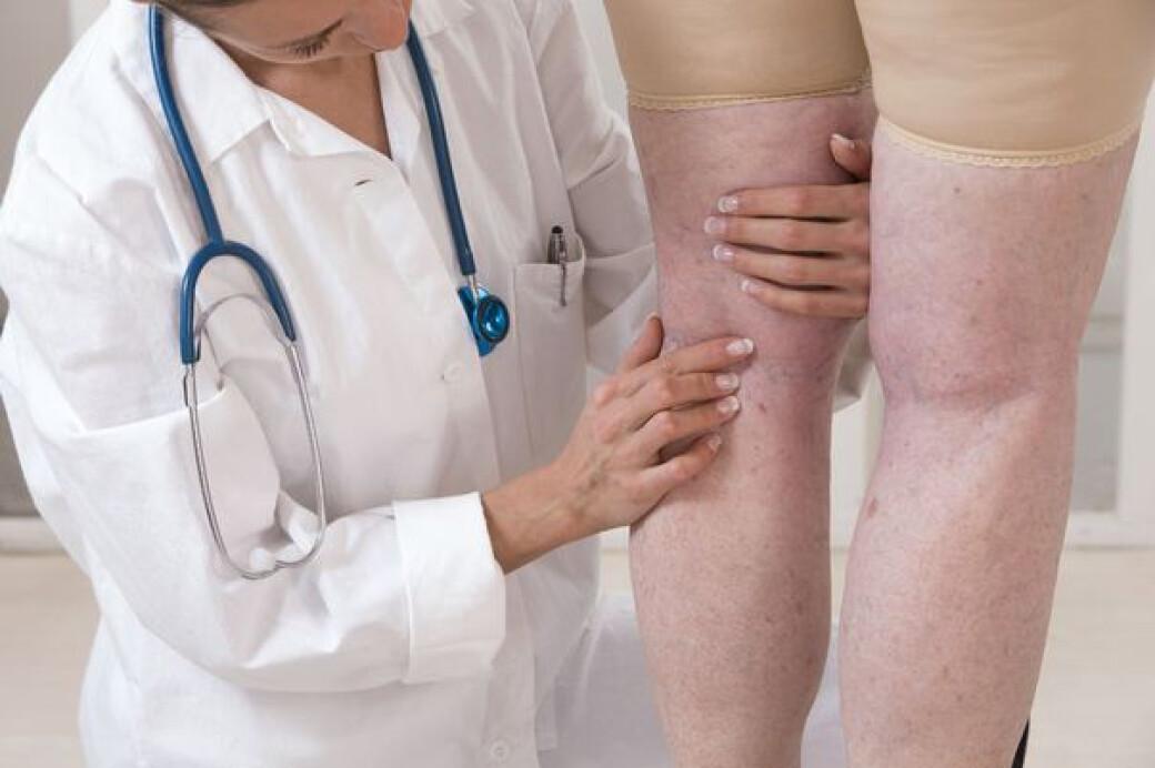 tratamentul venelor și articulațiilor)