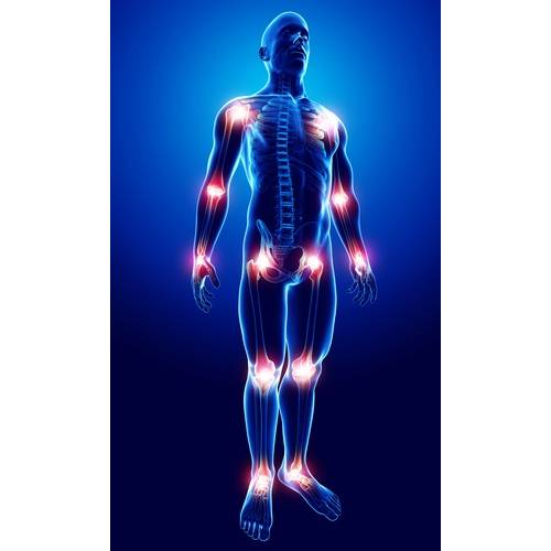 articulațiile umflate dureri severe semne ale artritei genunchiului