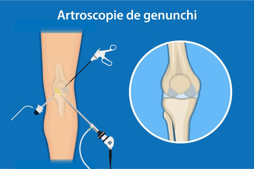 durere severă ascuțită în articulația genunchiului)