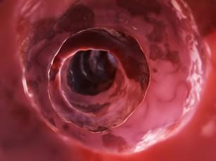 Boala Crohn de dureri articulare