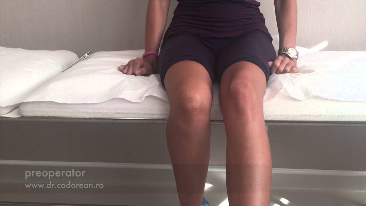 displazie patelofemorală genunchiului