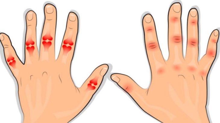 artrita pe degete