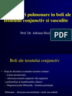 Vasculită sistemică boală a țesutului conjunctiv, Prețul unguentului pentru durerile articulare