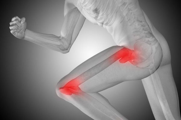 dureri de șold în sport