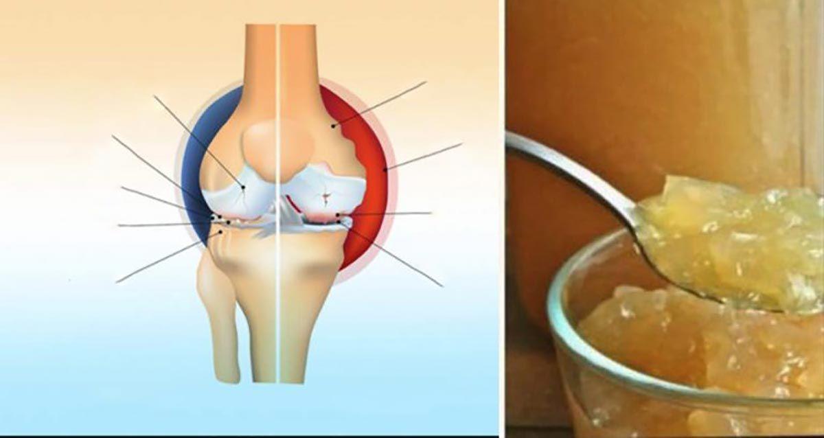 remediu pentru durerile de spate și articulații)