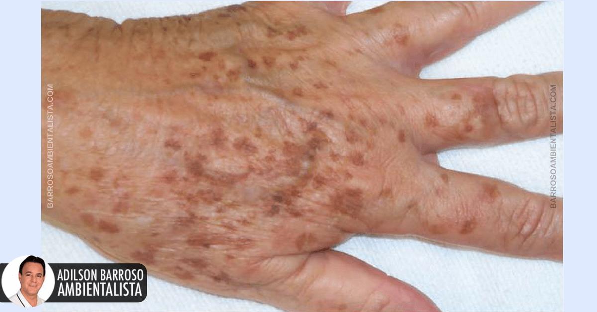 braț foarte dureros ce să facă artrită)