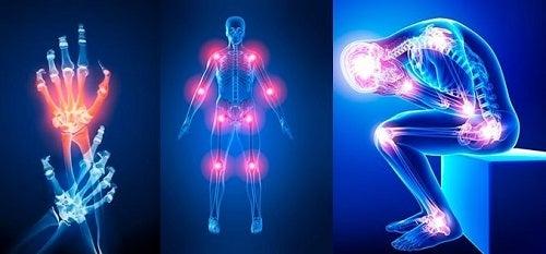 Sănătatea oaselor, mușchilor si articulațiilor - WÖRWAG Pharma