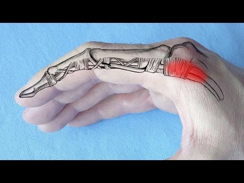 articulația pe braț doare cum se vindecă