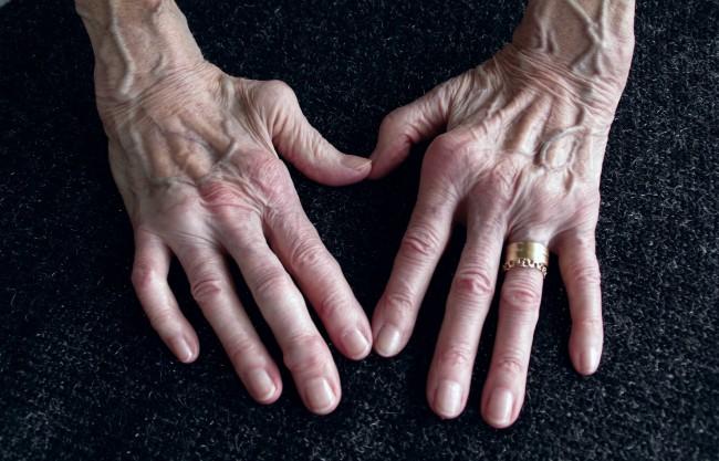 tratamentul artritei reumatoide la degete