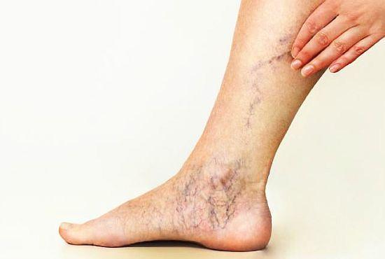 cel mai bun remediu pentru tratarea articulațiilor picioarelor)