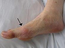 tratamentul artrozei printr-un forum alimentar brut unguent pentru durerea articulațiilor la genunchi