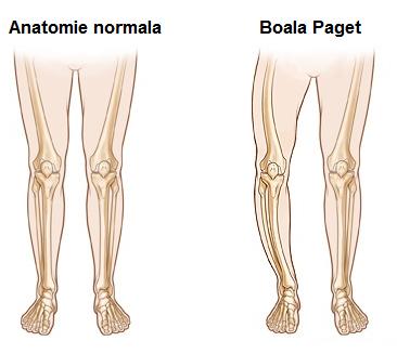 boli osoase și articulare Preț artrita genunchi artroza gradul 2