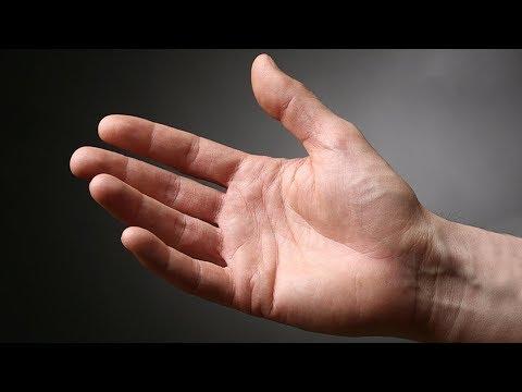 deteriorarea articulației la mână)