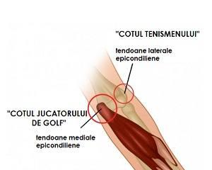 inflamația tendoanelor articulației cotului