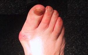 artrita purulentă a prognosticului gleznei